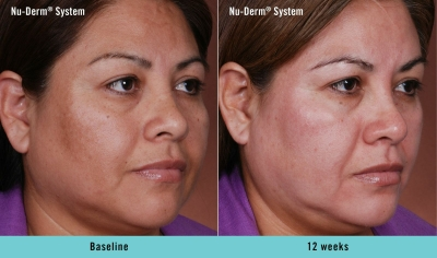 Obagi Nu Derm Skin Color Correction